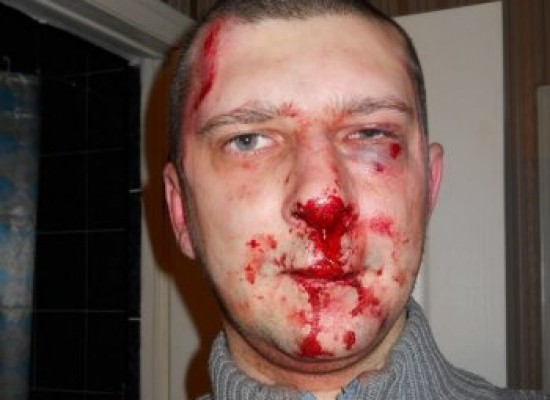 Russian Journalist Attacked, Severely Beaten In Saratov