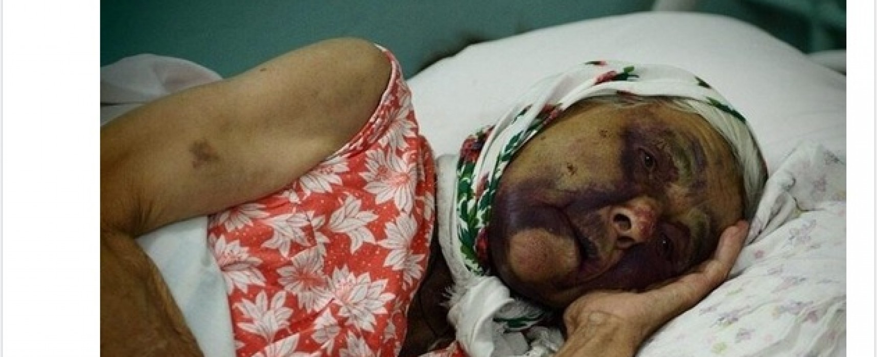 Фейк: В Киеве избили ветерана Великой Отечественной войны