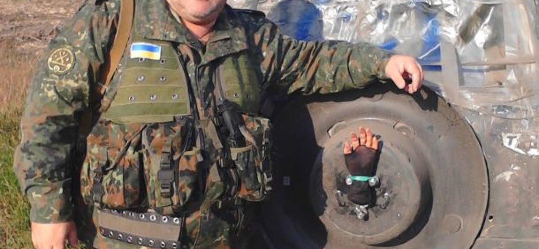 """Руските СМИ разпространиха фейк за """"отрязаната ръка на """"опълченец"""""""""""